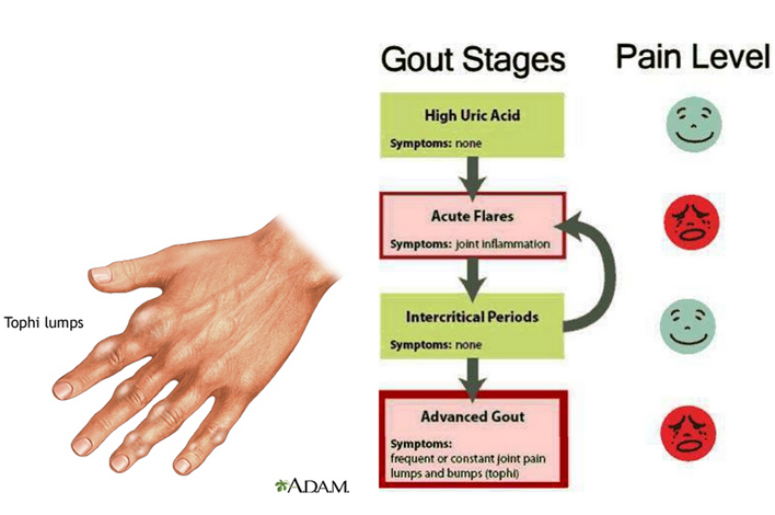 uric acid levels in gout gout relief allopurinol gout ankle alcohol